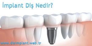 İmplant Diş Nedir?