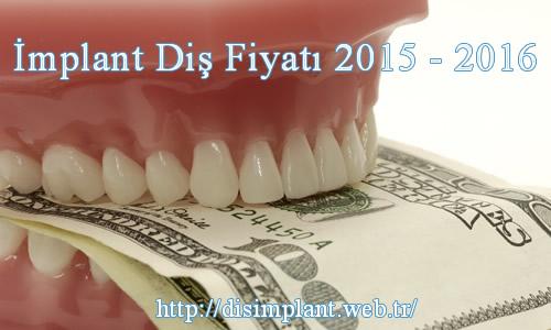 İmplant Diş Fiyatı 2015 - 2016