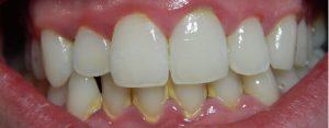 Diş Plağı Nedir