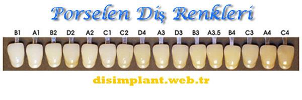 Porselen Diş Renkleri