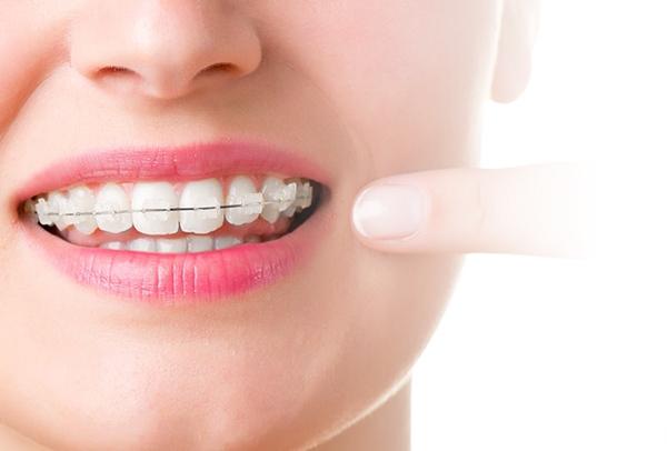 porselen diş teli nedir