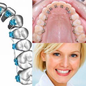 lingual ortodonti fiyatları