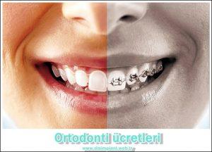 Ortodonti Ücretleri Ne kadar