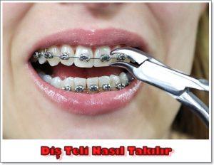 Diş Teli Nasıl Takılır