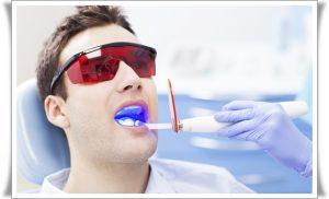 Lazerle Diş Beyazlatma
