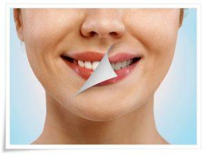 Diş Beyazlatma Yolları