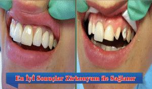 Zirkonyum Kaplama Diş Fiyatları 2017 Yılında Ne Kadar