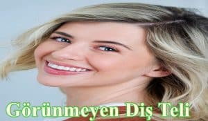 Görünmeyen Diş Teli Tedavisi 2017