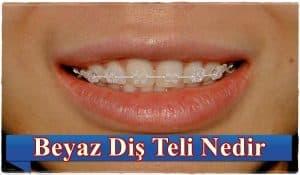 Beyaz Diş Teli Nedir?