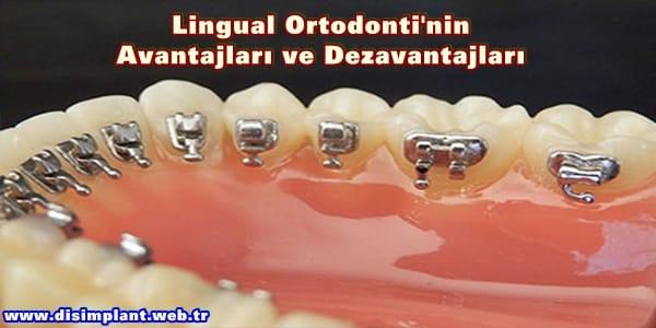 Lingual Ortodonti'nin Avantajları ve Dezavantajları