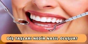 Diş Taşları