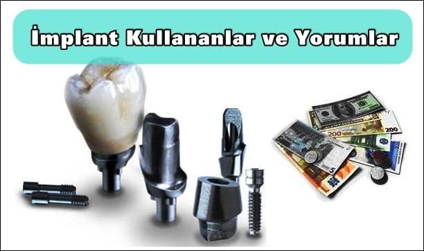 İmplant kullananlar diş implant hakkında yorumlar ve implant fiyatları forum