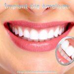 İmplant Diş Ameliyatı