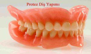 Diş Protezi Nedir? Protez Diş Nasıl yapılır
