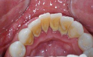 Diş Plağı Nasıl Oluşur?
