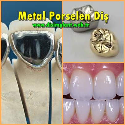 Metal Porselen Diş