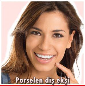 Porselen Diş Ekşi