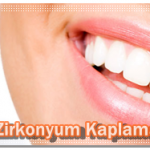 2018 Zirkonyum diş çeşitlerine göre fiyatları