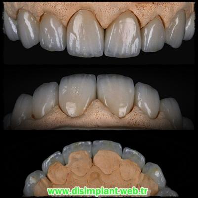Zirkonyum Diş Yaptıranlar