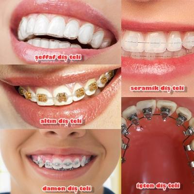 diş teli çeşitleri