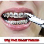 Diş Teli Çalışması