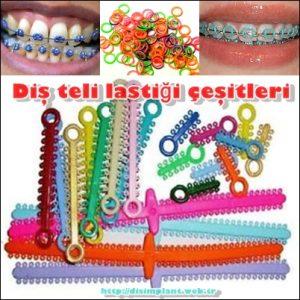 Diş Teli Lastiği