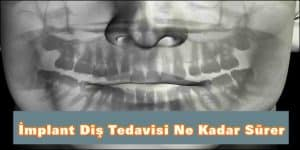 İmplant Diş Tedavisi Ne Kadar Sürer
