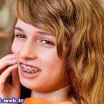 Diş teli taktırmak ağrılı mıdır?