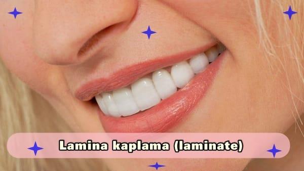 Lamina kaplama (laminate)