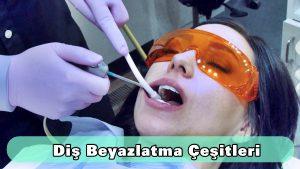 Diş beyazlatma çeşitleri