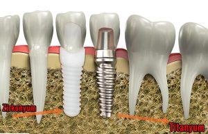 Diş İmplantları Dişin Yerini Tutar Mı?