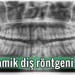 Panoramik diş röntgeni Nedir? Zararlı mı?