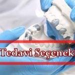Protez Diş Tedavi Seçenekleri nelerdir?